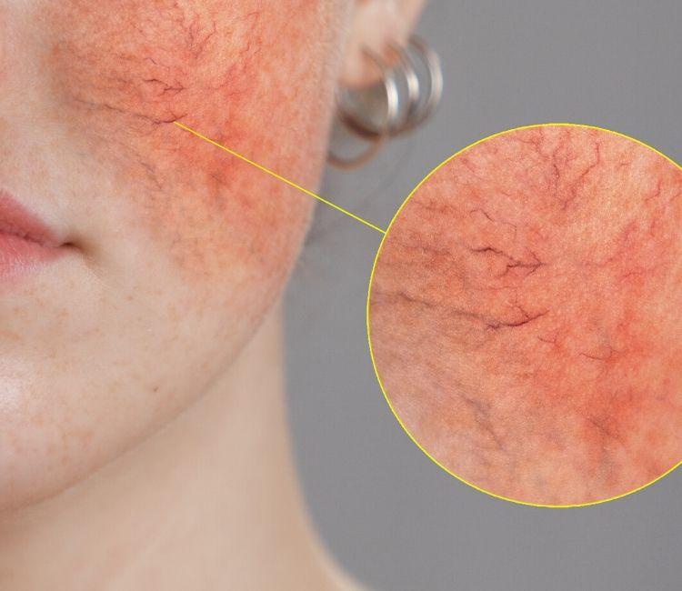 kulit wajah sensitif