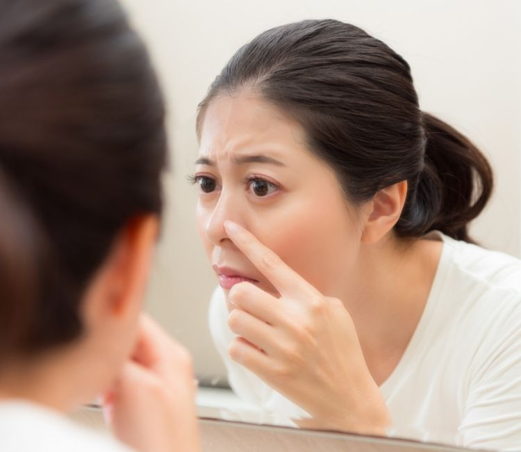5 Tips Memilih Bedak Untuk Wajah Berjerawat