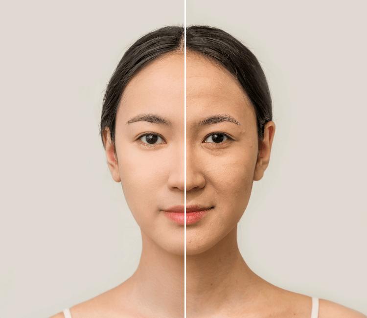 retinol, perawatan wajah, manfaat retinol, kerutan, keriput,, penuaan dini